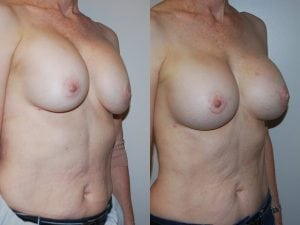 Complex Breast Patient 33 angled right.
