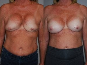 Complex Breast Patient 34 front.