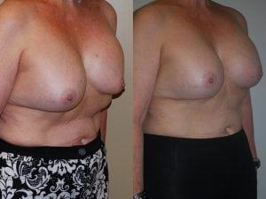 Complex Breast Patient 37 angled right.
