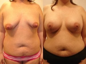 Complex Breast Patient 39 front.