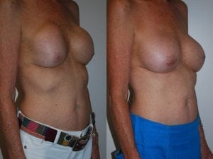 Complex Breast Patient 40 angled right.