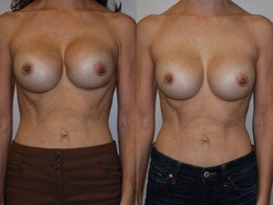 Complex Breast Patient 41 front.