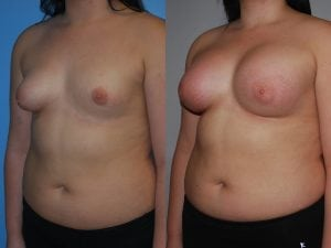 Complex Breast Patient 42 angled left.