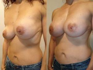 Complex Breast Patient 43 angled left.