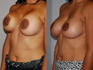 Complex Breast Patient 46 angled left.