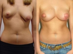 Complex Breast Patient 05 front.