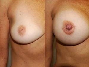 Complex Breast Patient 50 front.