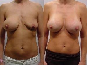 Complex Breast Patient 08 front.