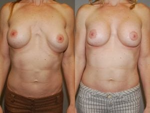 Complex Breast Patient 09 front.