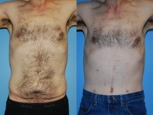 Male Abdominoplasty Patient 10 facing forward.