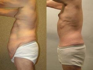 Male Abdominoplasty Patient 11 facing left.