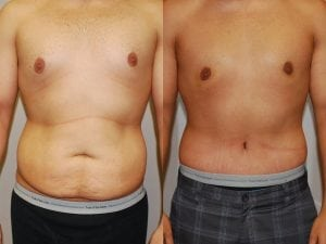 Male Abdominoplasty Patient 03 facing forward.