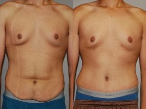 Male Abdominoplasty Patient 04 facing forward.