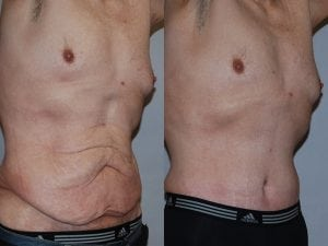 Male Abdominoplasty Patient 05 angled right.