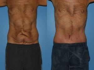 Male Abdominoplasty Patient 06 facing forward.