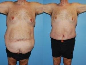 Male Abdominoplasty Patient 07 facing forward.