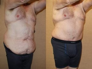 Male Abdominoplasty Patient 08 angled right.