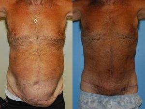 Male Abdominoplasty Patient 09 facing forward.