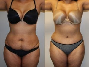 Tummy Tuck Patient 13 facing front.