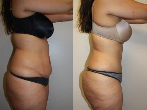 Tummy Tuck Patient 13 facing right.
