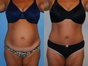 Tummy Tuck Patient 30 front.