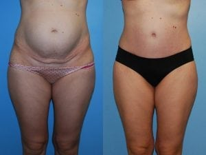 Tummy Tuck Patient 31 front.