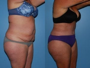 Tummy Tuck Patient 34 angled right.