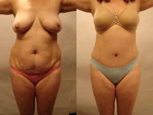 Tummy Tuck Patient 42 front.
