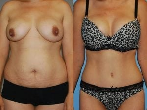 Tummy Tuck Patient 52 front.