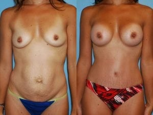Tummy Tuck Patient 63 front.